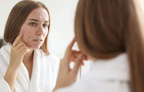 I Used 5 Home Remedies To Get Rid Of Blemishes And Here Is What Happened