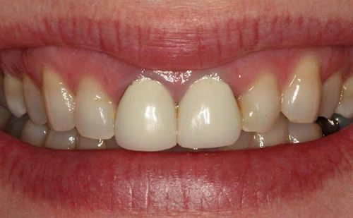 On the gums there was a bump   Medical diagnosis