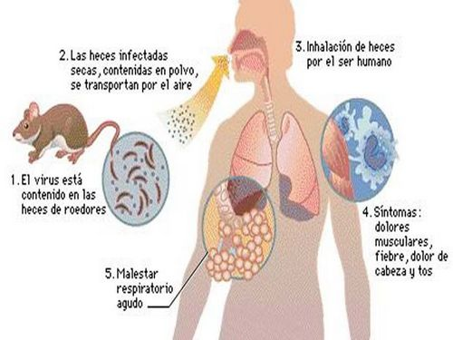 Argentine hemorrhagic fever: causes, symptoms, diagnosis and treatment
