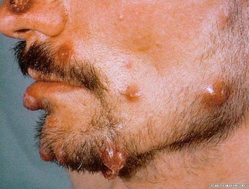 Bartonellosis: causes, symptoms, diagnosis and treatment