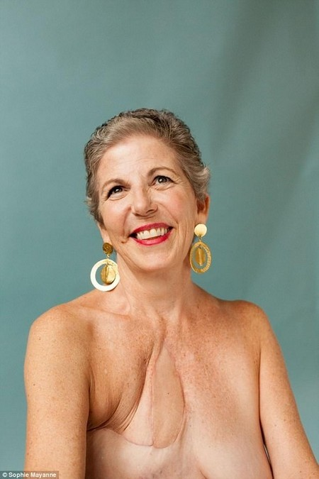 BARBARA had three surgeries on her chest after being diagnosed with a rare breast cancer