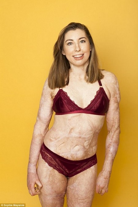 CATRIN suffered burns on 96 percent of her skin in a coach crash that burst aflame in 2013