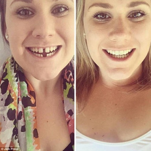 Mind the gap? This woman did and happily bridged the confidence barrier to a beautiful smile
