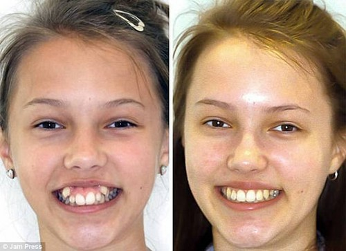 This girl's canines were brought into line and now she's ready to shine