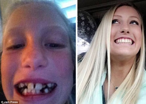 With teeth transformed, this woman is now less ghoulish and more girlish