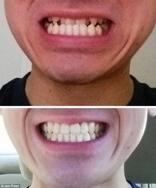 Before braces worked their magic, this man was a high risk under biter