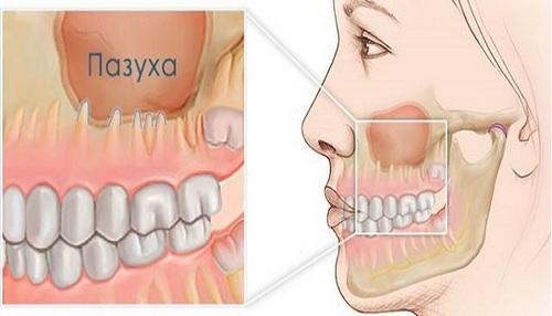 Dental sinusitis, the symptoms and treatment