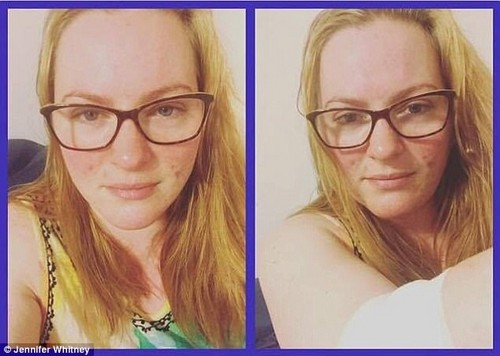 The mother-of-two's naturopath claimed it was all down to her flu vaccine - despite an array of evidence claiming the shot is completely safe