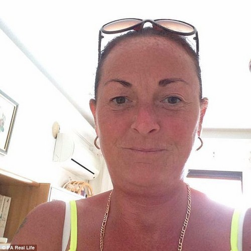 Beverley Gardner, 51, from Newcastle-upon-Tyne, first noticed the blemish on her right elbow in September this year - but thought nothing of it
