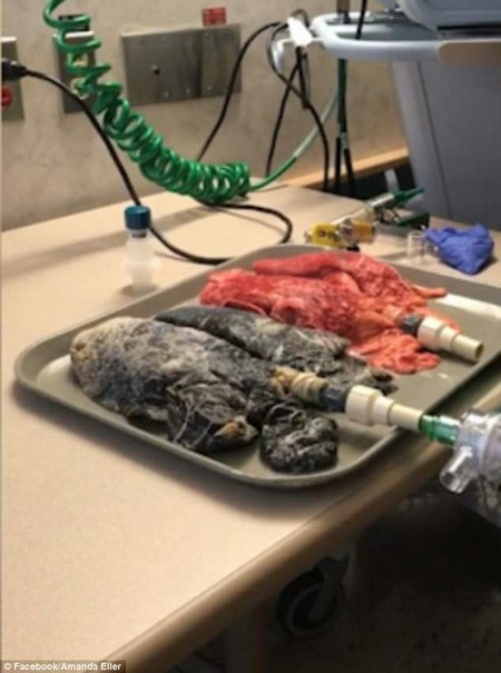 The black, cancer-ridden lungs of a pack-a-day smoker failed to properly inflate when pumped