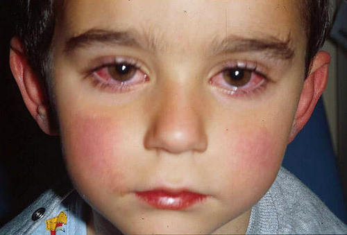 Watery eyes and a runny nose, treatment | Medical diagnosis