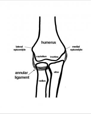 Reduction of Radial Head Dislocation