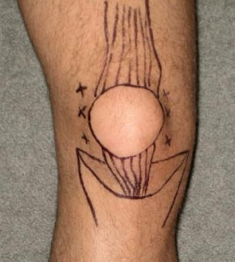 Knee Arthrocentesis
