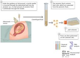 Prenatal Diagnosis & Fetal Abnormality Screening