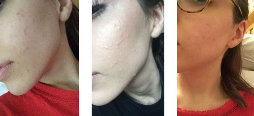 This Teen Is Claiming Green Tea Cleared Her Cystic Acne