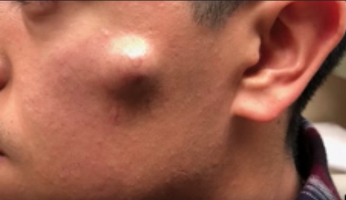 This Viral Pimple-Popping Video Will Give You Nightmares