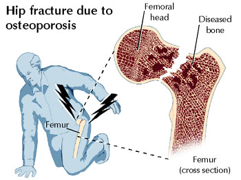 Causes of osteoporosis & osteopenia