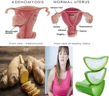 Who is at risk of adenomyosis?