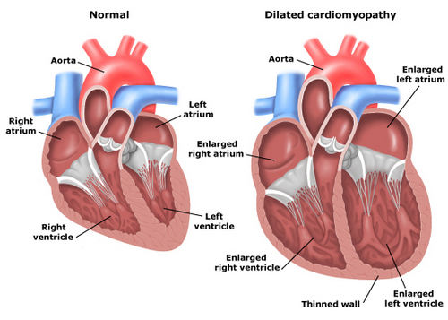 Cardiomyopathy treatment