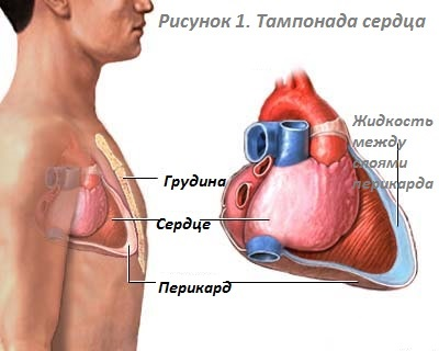 Treatment of tamponade of the heart