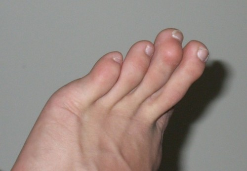Arthrosis of the foot, causes, treatment