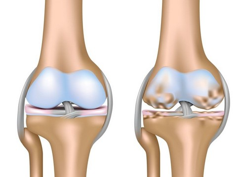 Treatment of arthrosis, knee joints