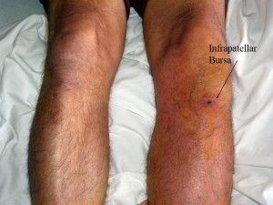 Bursitis, treatment, causes