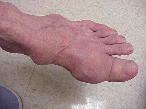 Rheumatoid arthritis of the legs, treatment