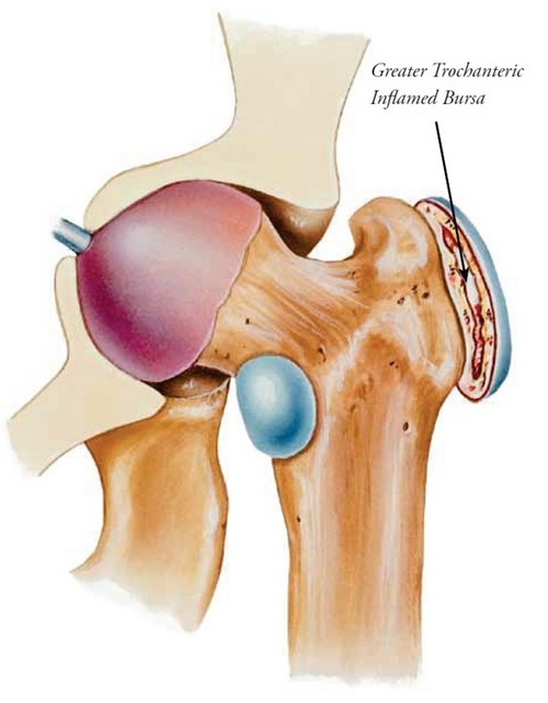 Hip bursitis, treatment