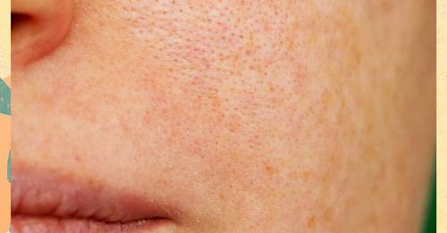 It's totally fine and normal to have visible pores on your face