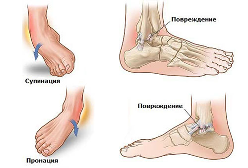 Rupture of ankle ligaments
