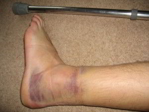 How to treat, dislocation of the ankle