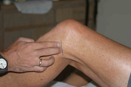 Osteoarthrosis of the knee, treatment