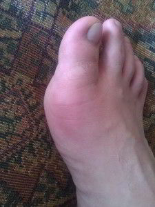 Arthritis of the toes, symptoms, treatment