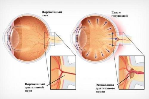 What is eye glaucoma