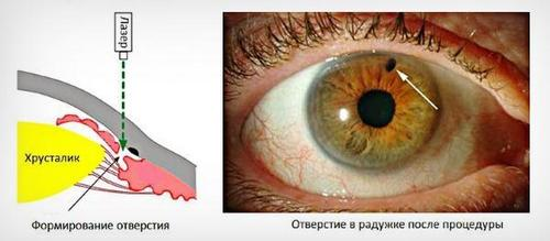 Glaucoma surgery, treatment