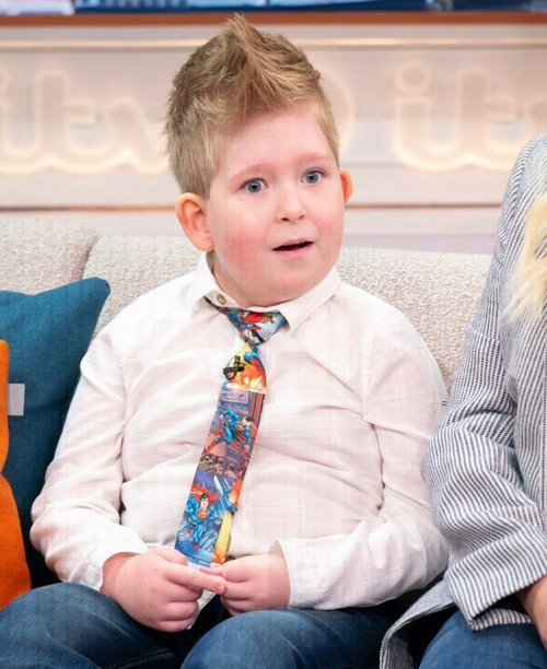 A boy born without a brain has denied the predictions of Noah Wall's doctors, the will to live, birth defects, interesting, medicine, the brain, incredible, the wonders of physiology