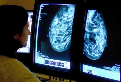 New breast cancer drug 'reduces risk of disease progression or death'